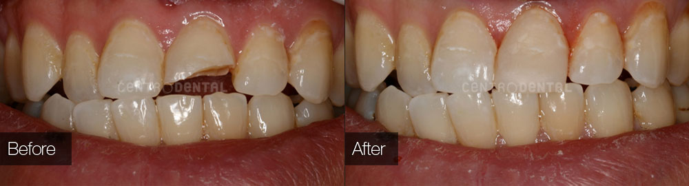 Fractured front tooth repaired with composite filling