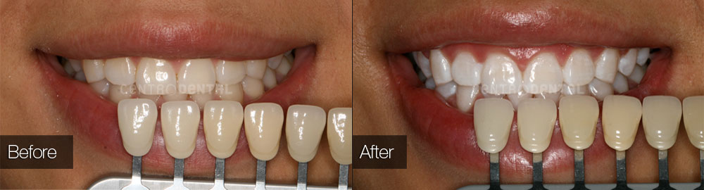 Teeth whitened with Zoom in-office bleaching