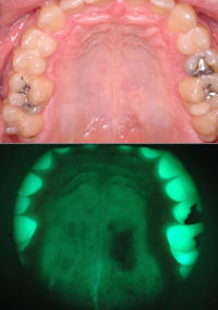 Right: A positive result was seen during screening in the palate that otherwise appeared normal to naked eyes.